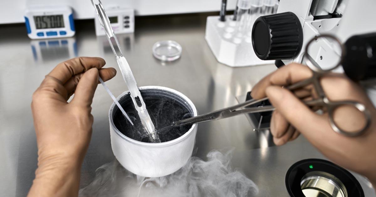 Congelamento de Óvulos – tudo o que você precisa saber